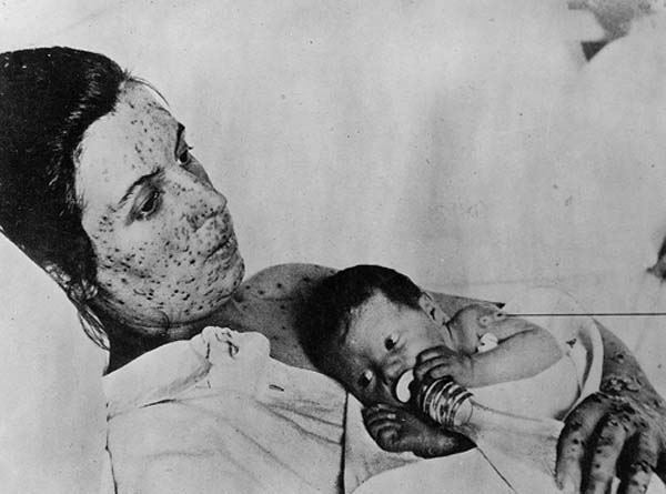 small pox mother with her children