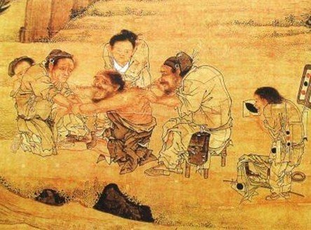 Acupuncture: ancient Chinese invention